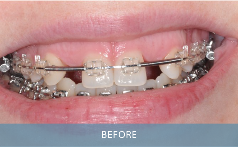 Novo Dental Centre - Smile Gallery