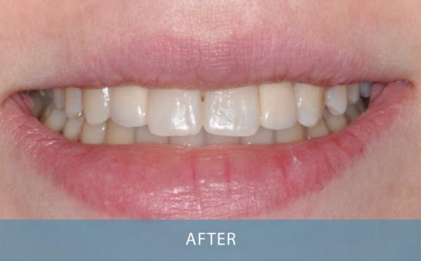 Novo Dental Centre - Smile Gallery After