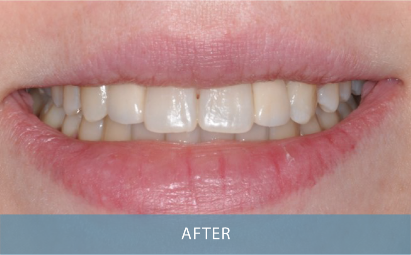 Novo Dental Centre - Smile Gallery After