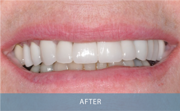 Novo Dental Centre - After Gallery