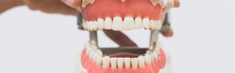 Life size model of teeth and jaw